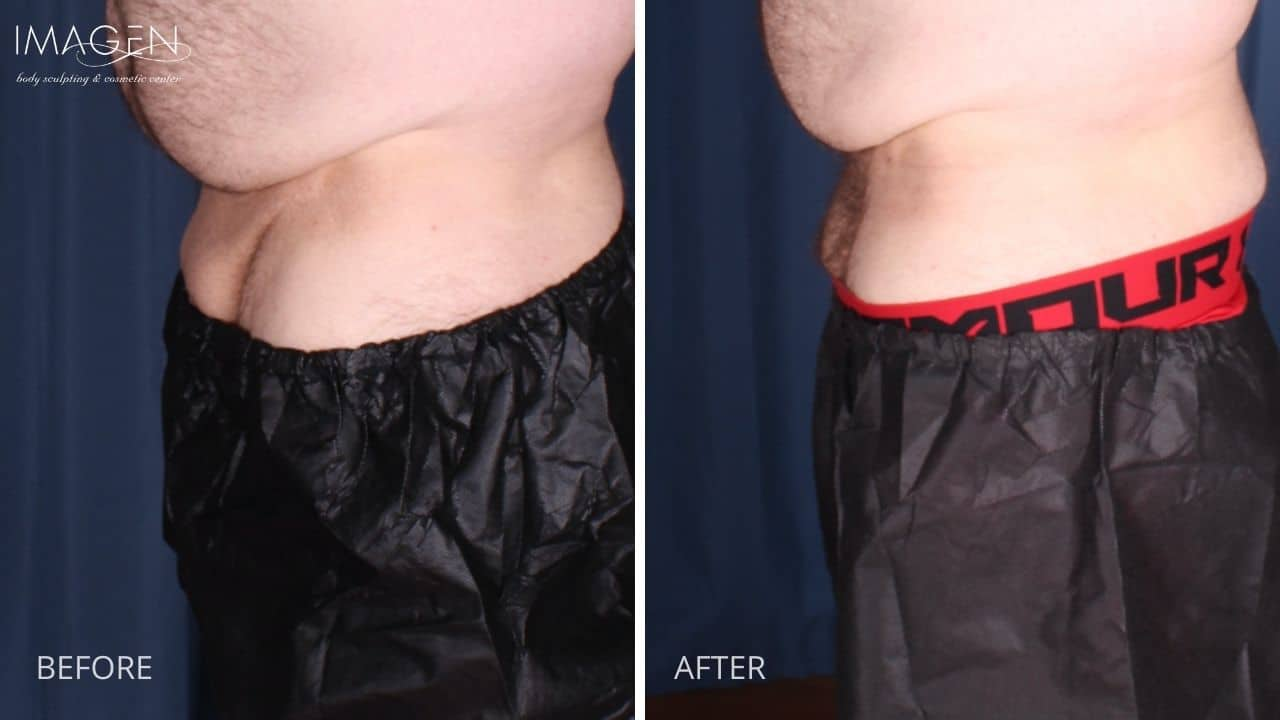 Body Areas  FUPA  Omaha Liposuction by Imagen